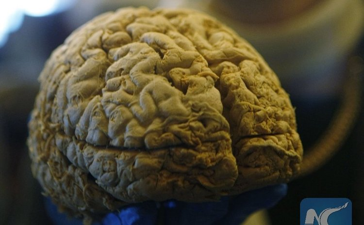 A resident takes a look at a human brain specimen at the Brain Health Fair held at Vancouver Convention Centre in Vancouver, Canada, April, 15, 2016.