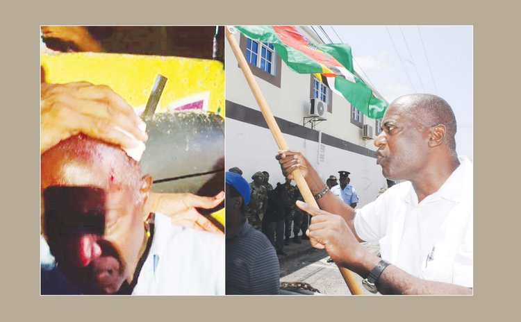 Right to left: Dr Sam Christian at protest and after he was hit by a stone at Soufriere
