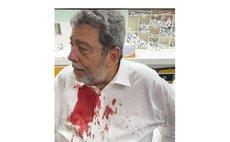 Injured St Vincent Prime Minister Ralph Gonsalves