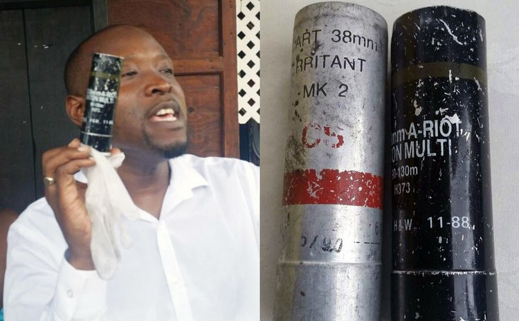 Tiyani Biyanzin and tear gas canisters